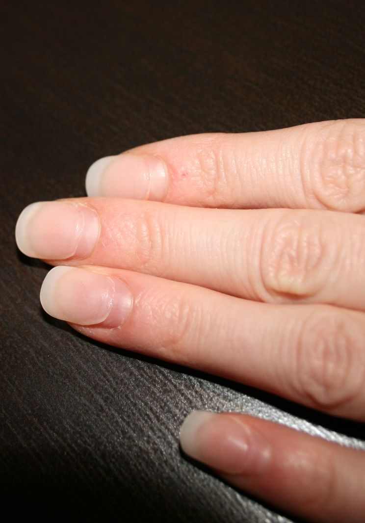 Acrylic Nail Recovery - Miss Danielle
